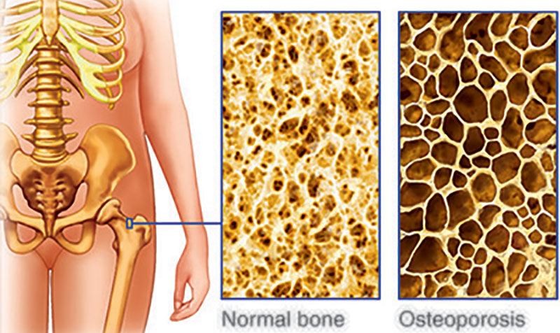 Pasteurised Milk and Osteoporosis/Cancer/Nutrients and Enzymes: